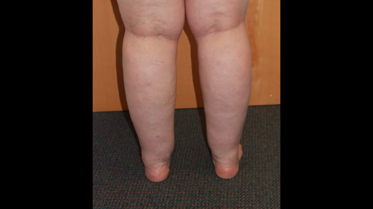 What are cankles and how to get rid of them