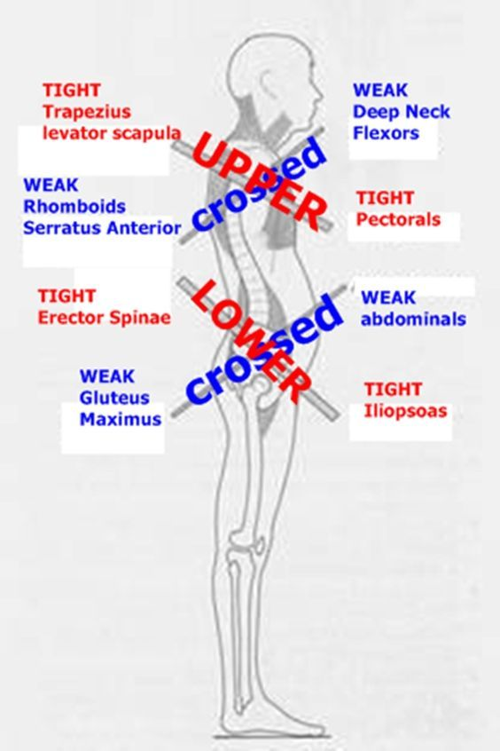 Upper and lower cross syndrome pdf