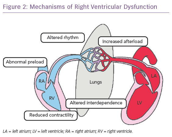 Pulmonary embolism definition medical dictionary
